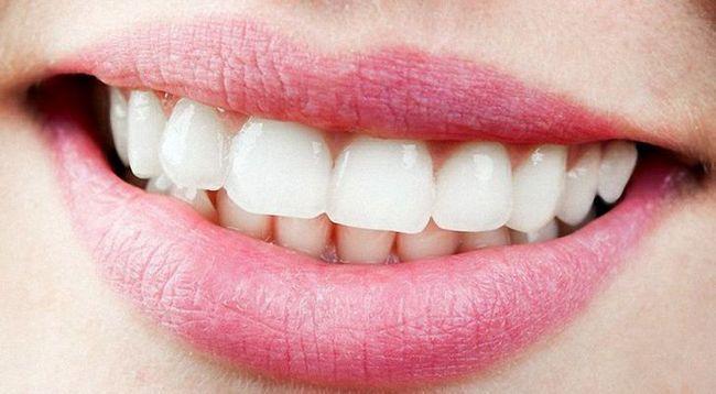 Відбілювання зубів в домашніх умовах за короткий час