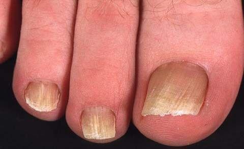 Чому жовтіють нігті на руках? Як впоратися з косметичним дефектом