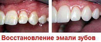 Відновлення емалі зубів